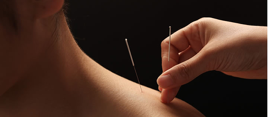 Acupuncture at River Stone
